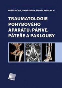 Traumatologie pohybového aparátu, pánve, páteře a paklouby - Martin Krbec, Oldřich Čech, Pavel Douša